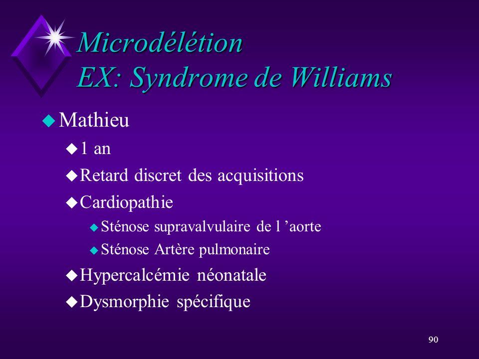 90 Microdélétion EX: Syndrome de Williams u Mathieu u 1 an u Retard discret des acquisitions u Cardiopathie u Sténose supravalvulaire de l aorte u Sté