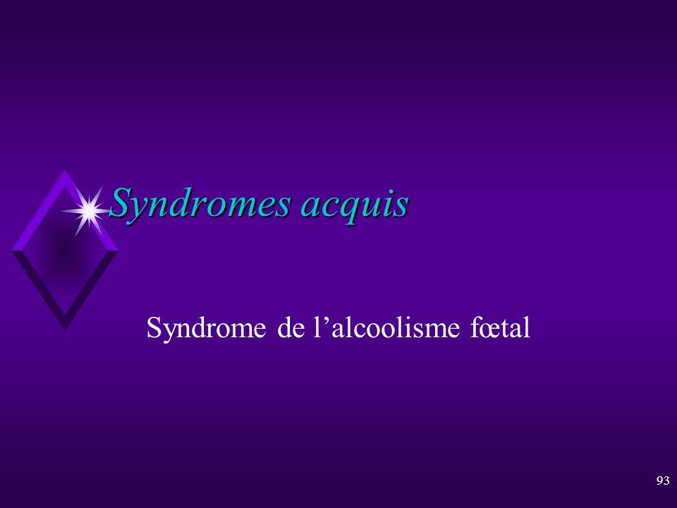 93 Syndromes acquis Syndrome de lalcoolisme fœtal
