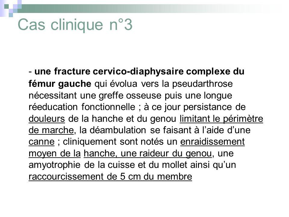 Cas clinique n°3 - une fracture cervico-diaphysaire complexe du fémur gauche qui évolua vers la pseudarthrose nécessitant une greffe osseuse puis une longue réeducation fonctionnelle ; à ce jour persistance de douleurs de la hanche et du genou limitant le périmètre de marche, la déambulation se faisant à laide dune canne ; cliniquement sont notés un enraidissement moyen de la hanche, une raideur du genou, une amyotrophie de la cuisse et du mollet ainsi quun raccourcissement de 5 cm du membre