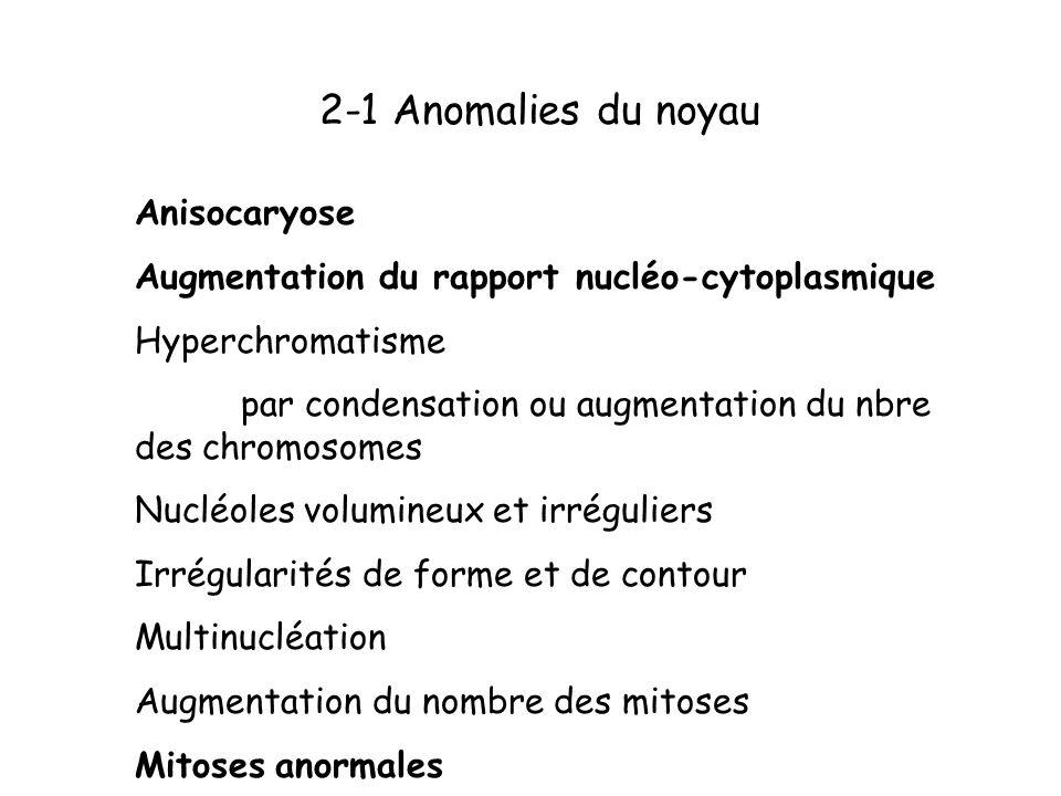 2-1 Anomalies du noyau Anisocaryose Augmentation du rapport nucléo-cytoplasmique Hyperchromatisme par condensation ou augmentation du nbre des chromos