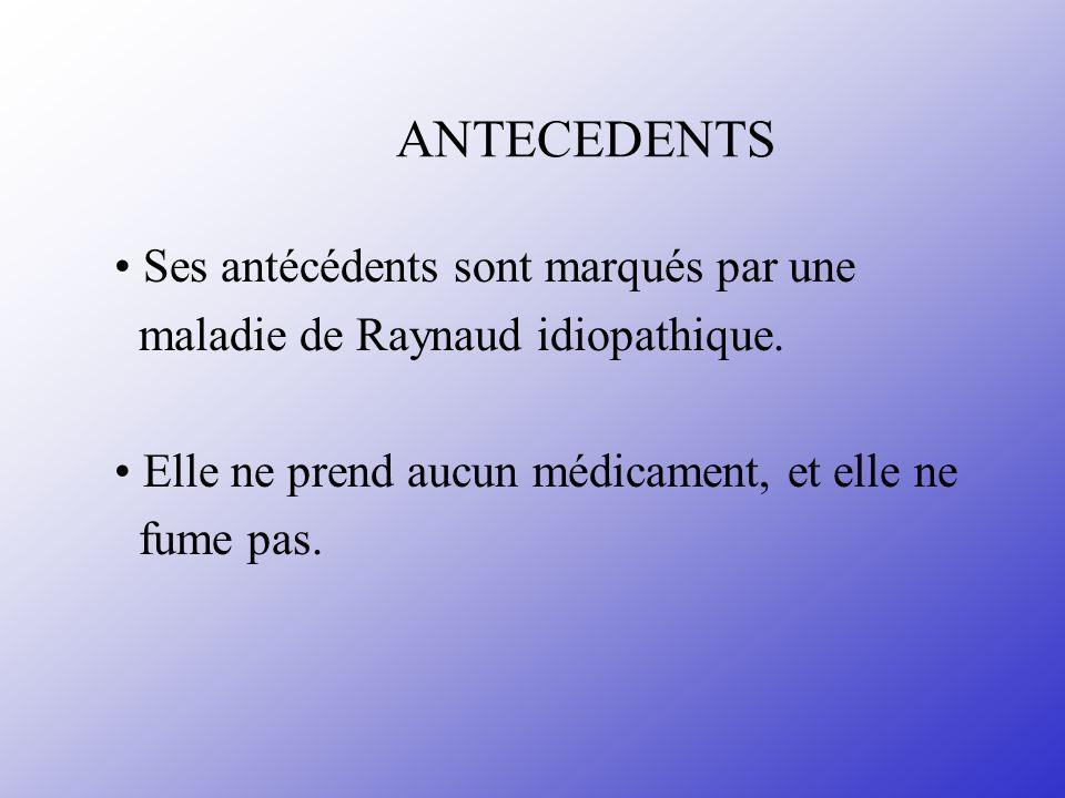 ANTECEDENTS Ses antécédents sont marqués par une maladie de Raynaud idiopathique. Elle ne prend aucun médicament, et elle ne fume pas.
