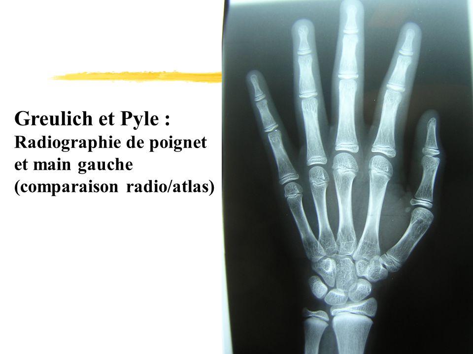 Greulich et Pyle : Radiographie de poignet et main gauche (comparaison radio/atlas)