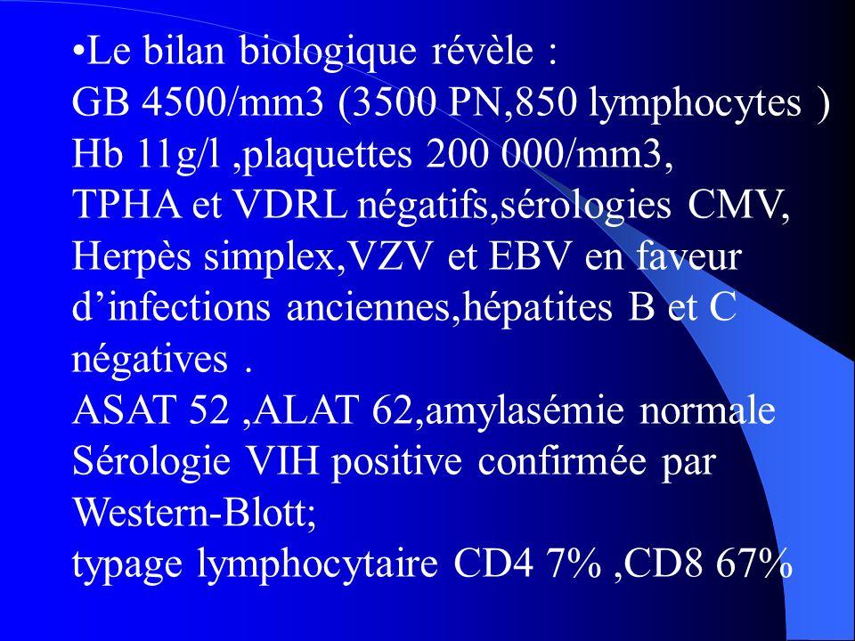Le bilan biologique révèle : GB 4500/mm3 (3500 PN,850 lymphocytes ) Hb 11g/l,plaquettes 200 000/mm3, TPHA et VDRL négatifs,sérologies CMV, Herpès simplex,VZV et EBV en faveur dinfections anciennes,hépatites B et C négatives.