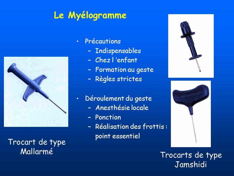 Le Myélogramme Précautions –Indispensables –Chez l enfant –Formation au geste –Règles strictes Déroulement du geste –Anesthésie locale –Ponction –Réal