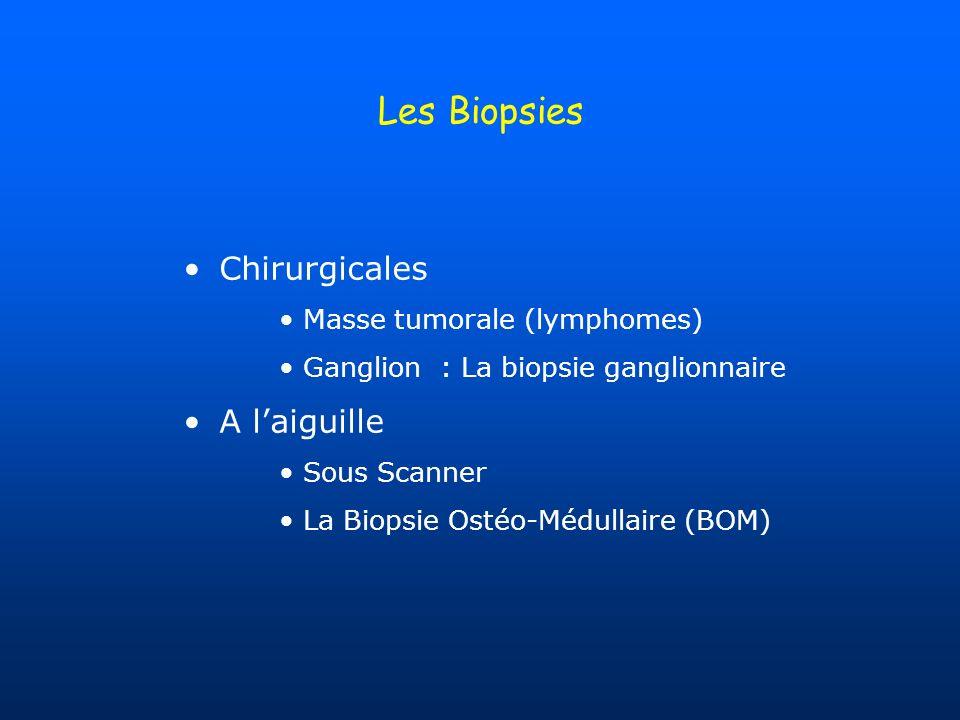 Les Biopsies Chirurgicales Masse tumorale (lymphomes) Ganglion : La biopsie ganglionnaire A laiguille Sous Scanner La Biopsie Ostéo-Médullaire (BOM)