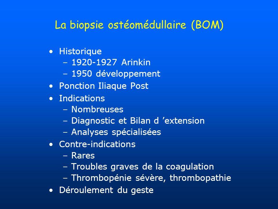 La biopsie ostéomédullaire (BOM) Historique –1920-1927 Arinkin –1950 développement Ponction Iliaque Post Indications –Nombreuses –Diagnostic et Bilan