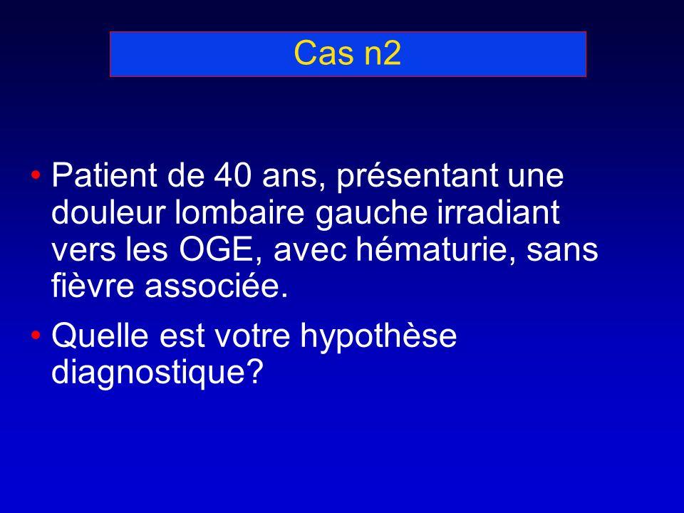 Cas n2 Patient de 40 ans, présentant une douleur lombaire gauche irradiant vers les OGE, avec hématurie, sans fièvre associée.