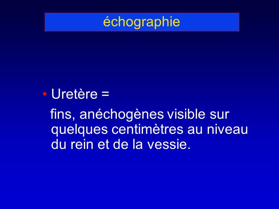 échographie Uretère = fins, anéchogènes visible sur quelques centimètres au niveau du rein et de la vessie.