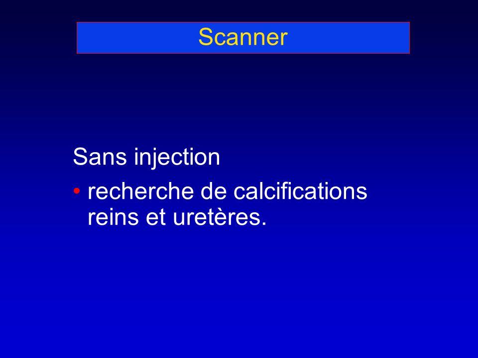 Scanner Sans injection recherche de calcifications reins et uretères.