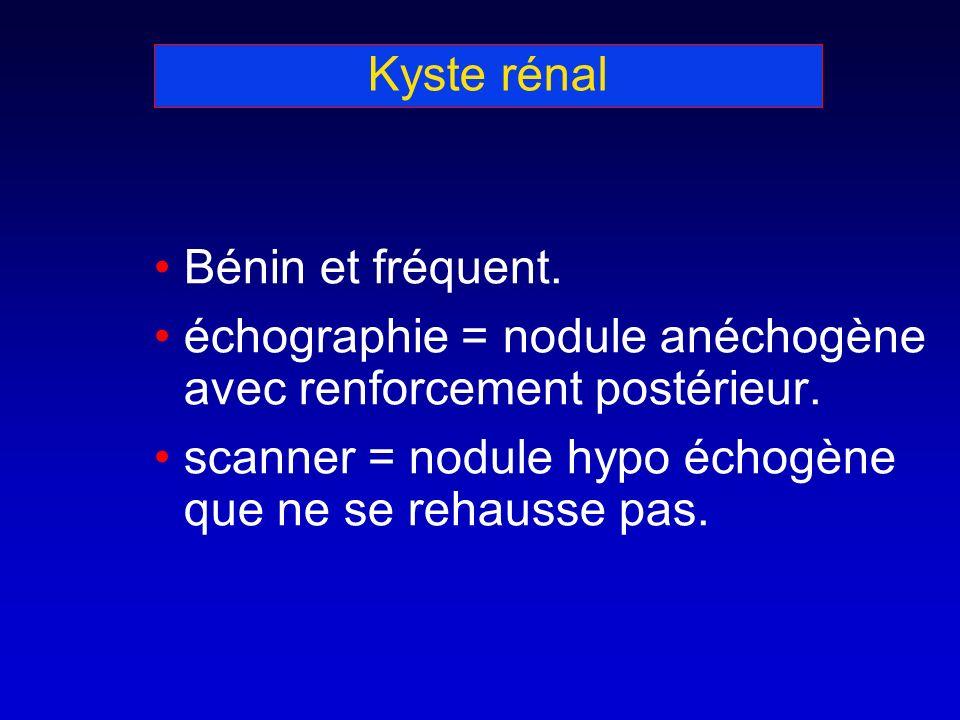 Kyste rénal Bénin et fréquent. échographie = nodule anéchogène avec renforcement postérieur. scanner = nodule hypo échogène que ne se rehausse pas.