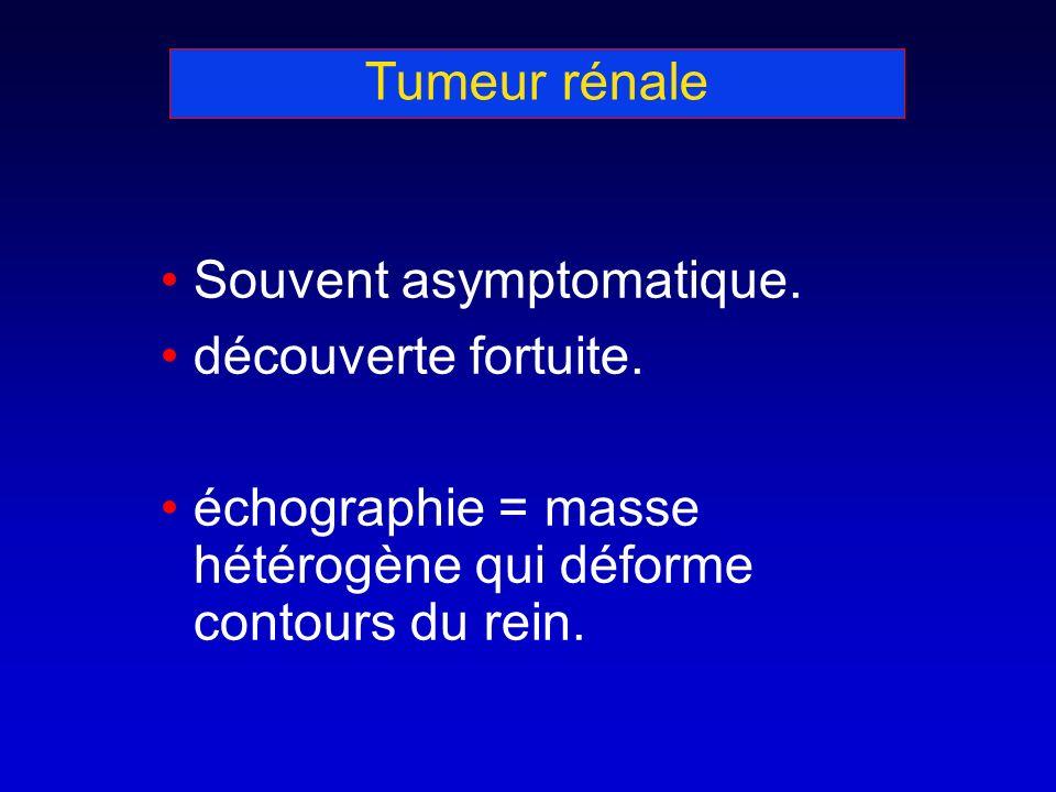 Tumeur rénale Souvent asymptomatique. découverte fortuite. échographie = masse hétérogène qui déforme contours du rein.