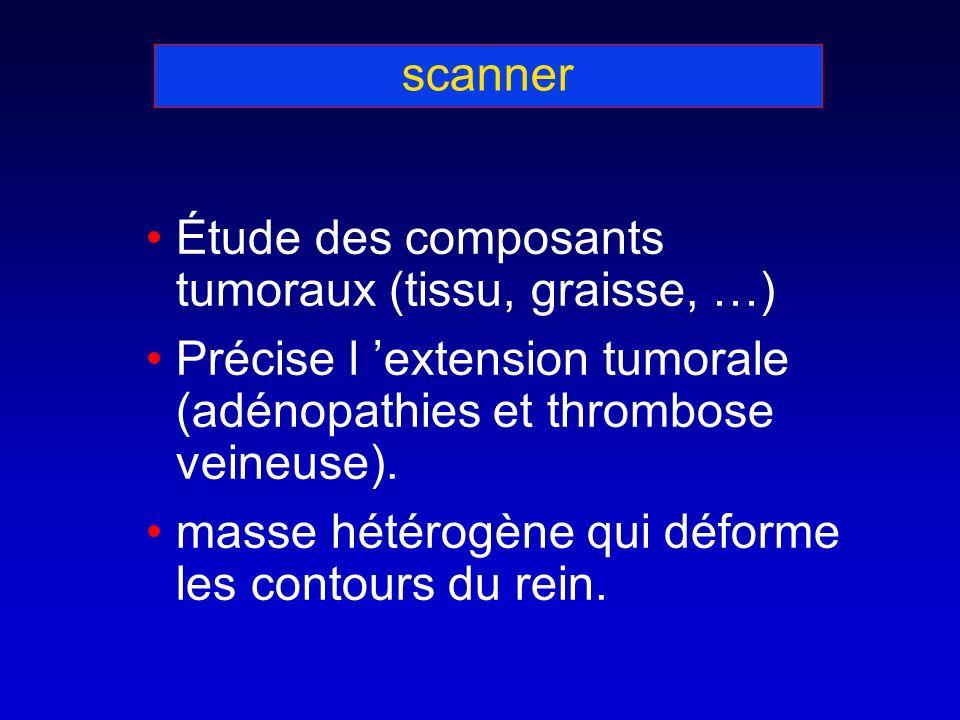 scanner Étude des composants tumoraux (tissu, graisse, …) Précise l extension tumorale (adénopathies et thrombose veineuse).