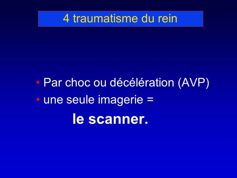4 traumatisme du rein Par choc ou décélération (AVP) une seule imagerie = le scanner.