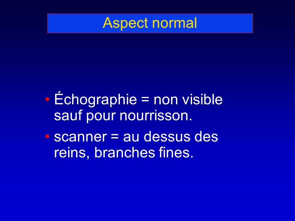 Aspect normal Échographie = non visible sauf pour nourrisson. scanner = au dessus des reins, branches fines.