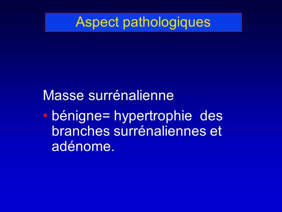 Aspect pathologiques Masse surrénalienne bénigne= hypertrophie des branches surrénaliennes et adénome.