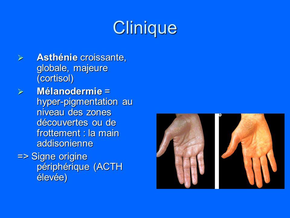 Clinique Asthénie croissante, globale, majeure (cortisol) Asthénie croissante, globale, majeure (cortisol) Mélanodermie = hyper-pigmentation au niveau