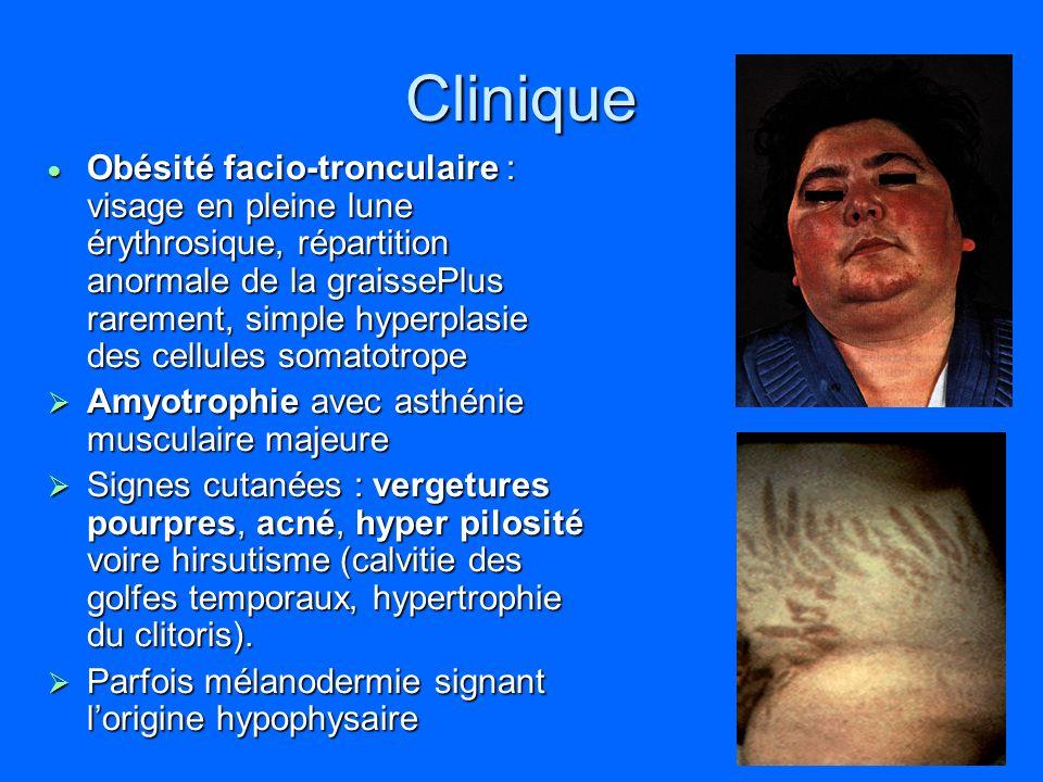 Clinique Obésité facio-tronculaire : visage en pleine lune érythrosique, répartition anormale de la graissePlus rarement, simple hyperplasie des cellu