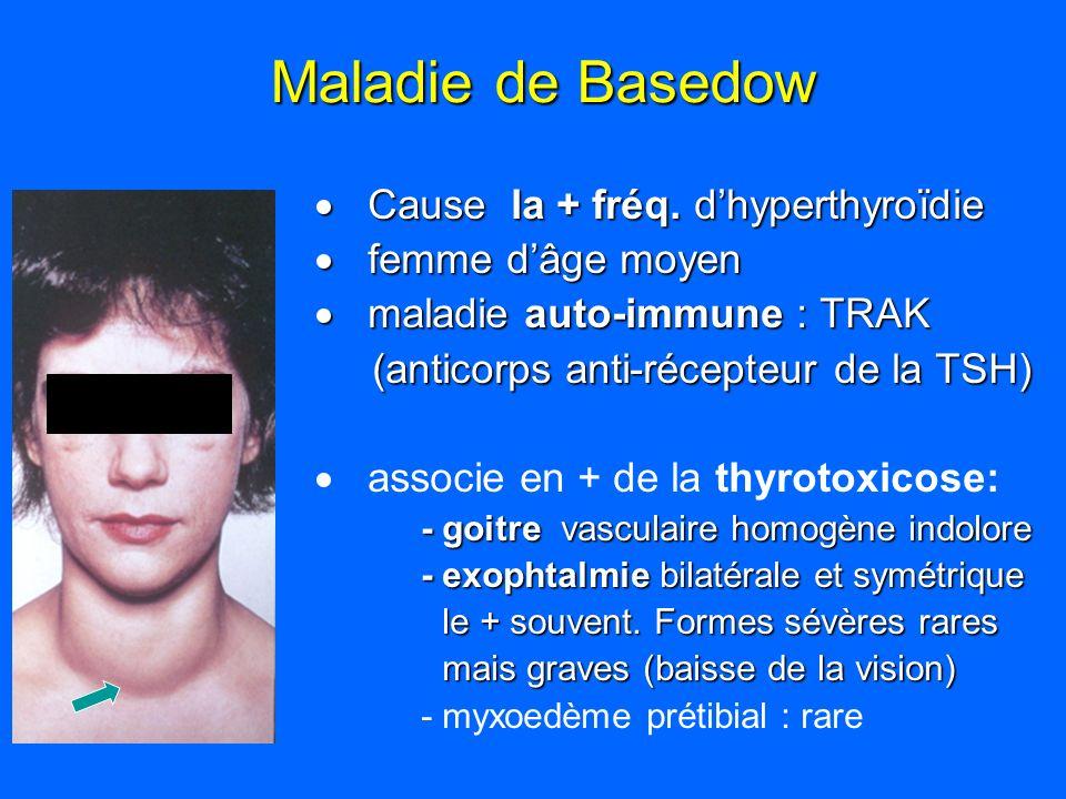 Maladie de Basedow Cause la + fréq. dhyperthyroïdie Cause la + fréq. dhyperthyroïdie femme dâge moyen femme dâge moyen maladie auto-immune : TRAK mala