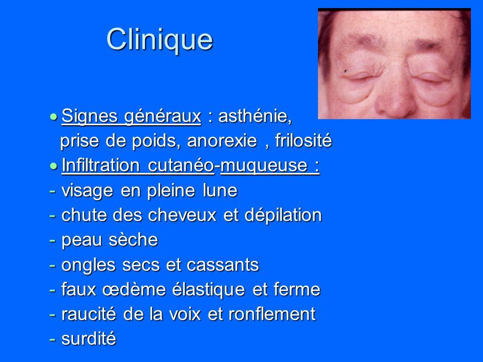 Clinique Signes généraux : asthénie, Signes généraux : asthénie, prise de poids, anorexie, frilosité prise de poids, anorexie, frilosité Infiltration