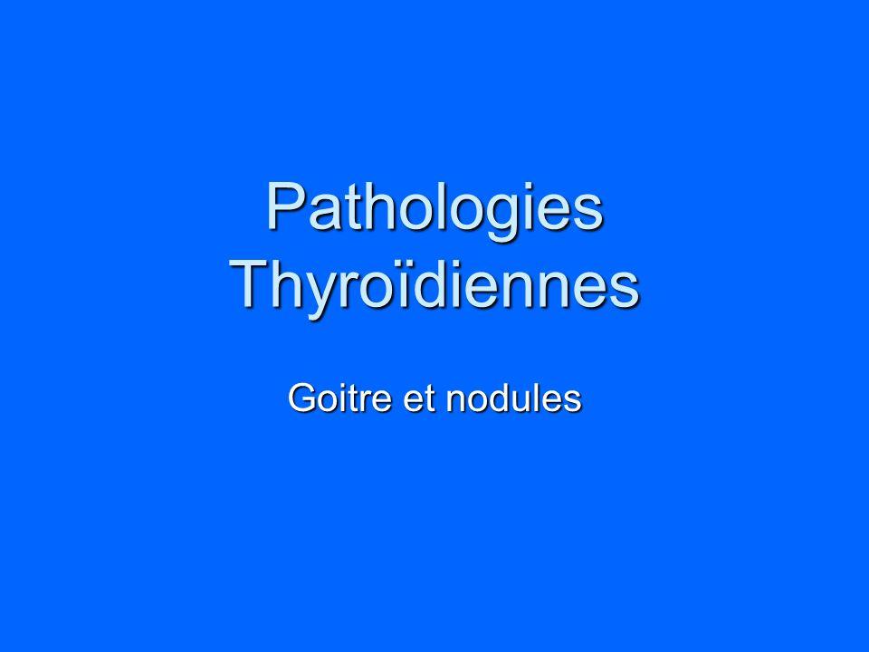 Pathologies Thyroïdiennes Goitre et nodules