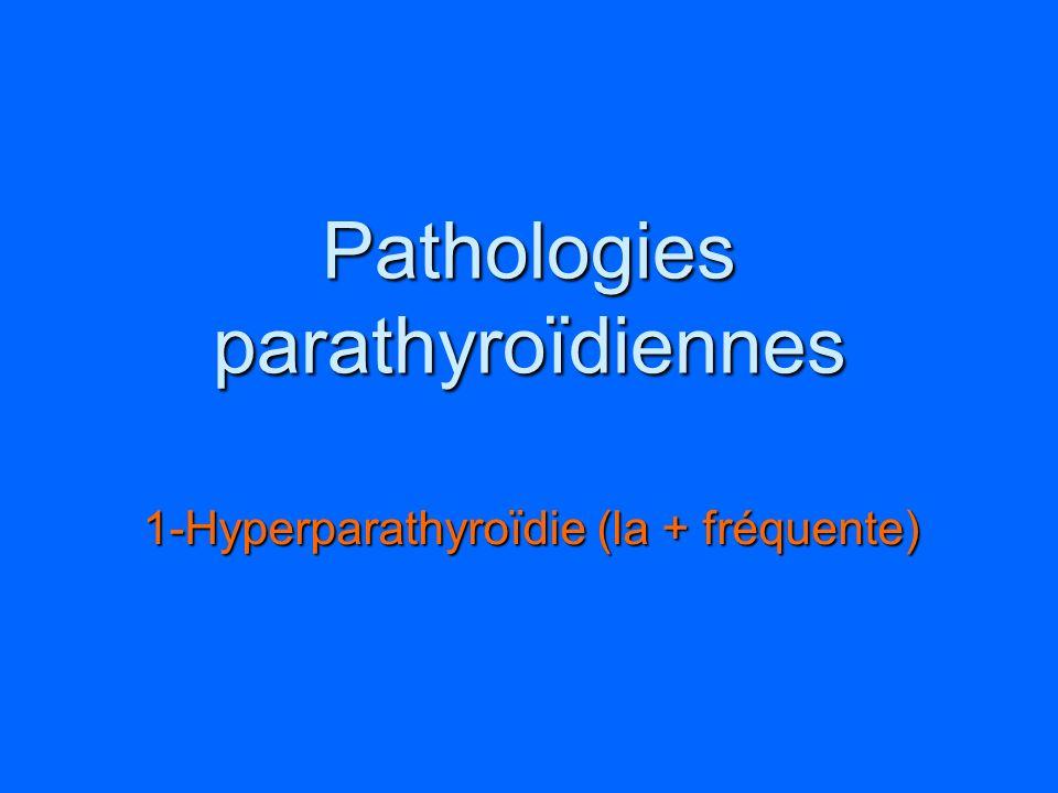 Pathologies parathyroïdiennes 1-Hyperparathyroïdie (la + fréquente)