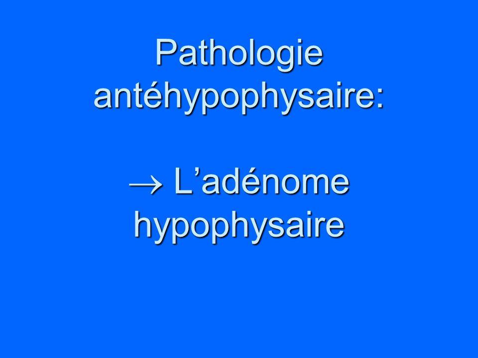 Pathologie antéhypophysaire: Ladénome hypophysaire