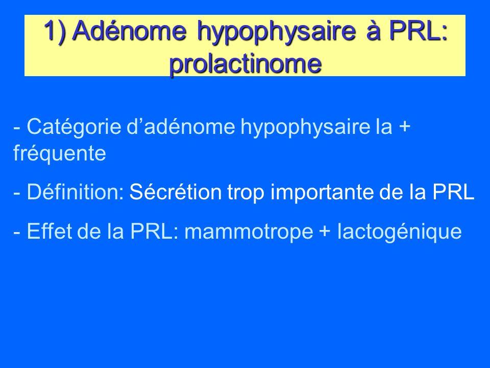 1) Adénome hypophysaire à PRL: prolactinome - Catégorie dadénome hypophysaire la + fréquente - Définition: Sécrétion trop importante de la PRL - Effet