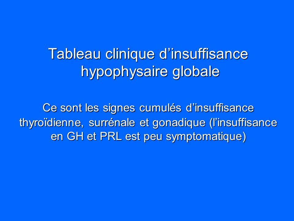 Tableau clinique dinsuffisance hypophysaire globale Ce sont les signes cumulés dinsuffisance thyroïdienne, surrénale et gonadique (linsuffisance en GH
