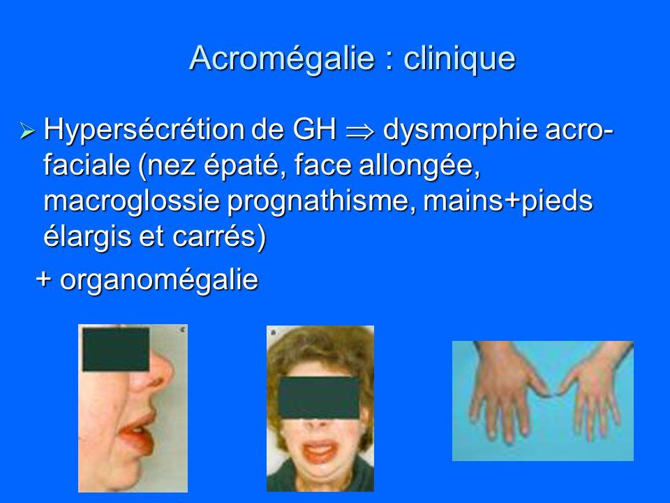 Acromégalie : clinique Hypersécrétion de GH dysmorphie acro- faciale (nez épaté, face allongée, macroglossie prognathisme, mains+pieds élargis et carr