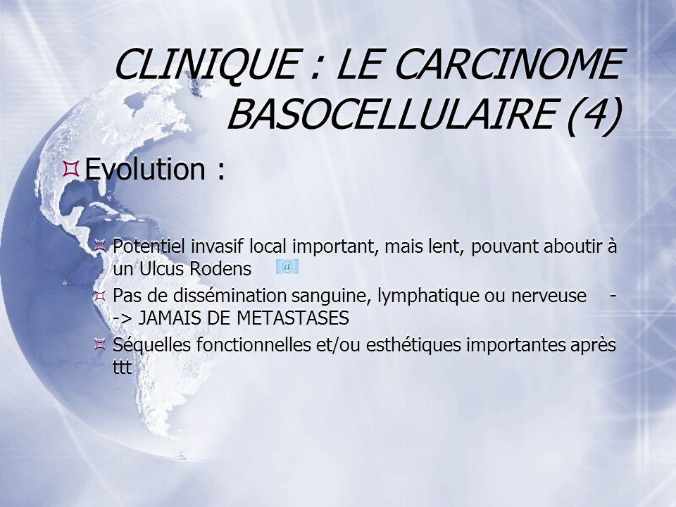 CLINIQUE : LE CARCINOME BASOCELLULAIRE (4) Evolution : Potentiel invasif local important, mais lent, pouvant aboutir à un Ulcus Rodens Pas de dissémination sanguine, lymphatique ou nerveuse - -> JAMAIS DE METASTASES Séquelles fonctionnelles et/ou esthétiques importantes après ttt Evolution : Potentiel invasif local important, mais lent, pouvant aboutir à un Ulcus Rodens Pas de dissémination sanguine, lymphatique ou nerveuse - -> JAMAIS DE METASTASES Séquelles fonctionnelles et/ou esthétiques importantes après ttt