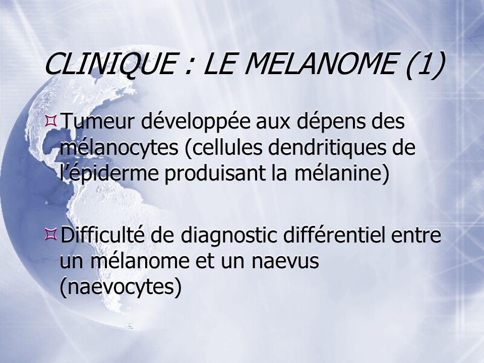 CLINIQUE : LE MELANOME (1) Tumeur développée aux dépens des mélanocytes (cellules dendritiques de lépiderme produisant la mélanine) Difficulté de diagnostic différentiel entre un mélanome et un naevus (naevocytes) Tumeur développée aux dépens des mélanocytes (cellules dendritiques de lépiderme produisant la mélanine) Difficulté de diagnostic différentiel entre un mélanome et un naevus (naevocytes)