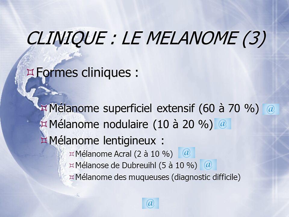 CLINIQUE : LE MELANOME (3) Formes cliniques : Mélanome superficiel extensif (60 à 70 %) Mélanome nodulaire (10 à 20 %) Mélanome lentigineux : Mélanome Acral (2 à 10 %) Mélanose de Dubreuihl (5 à 10 %) Mélanome des muqueuses (diagnostic difficile) Formes cliniques : Mélanome superficiel extensif (60 à 70 %) Mélanome nodulaire (10 à 20 %) Mélanome lentigineux : Mélanome Acral (2 à 10 %) Mélanose de Dubreuihl (5 à 10 %) Mélanome des muqueuses (diagnostic difficile)