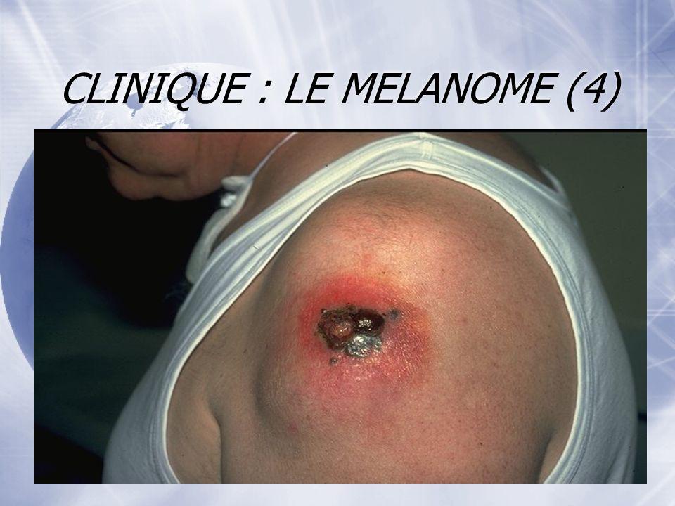 CLINIQUE : LE MELANOME (4) Evolution : sauf au stade de mélanome in situ (intra- épidermique), le patient atteint de mélanome est exposé au risque de récidive, de métastases locales ou régionales et de métastases viscérales.