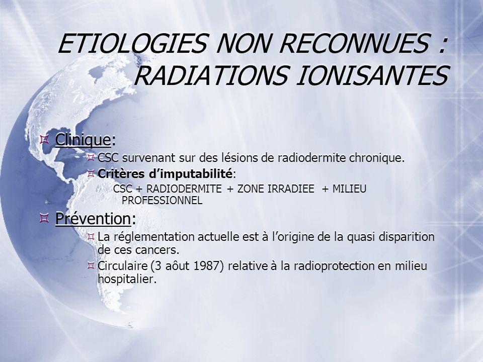 ETIOLOGIES NON RECONNUES : RADIATIONS IONISANTES Clinique: CSC survenant sur des lésions de radiodermite chronique.