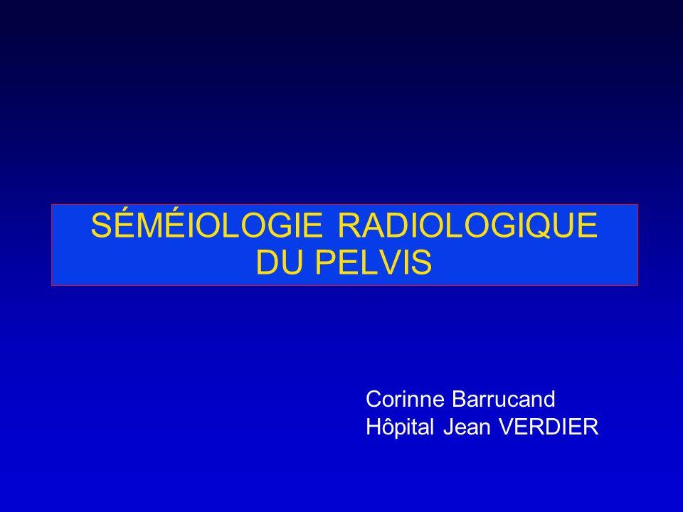 SÉMÉIOLOGIE RADIOLOGIQUE DU PELVIS Corinne Barrucand Hôpital Jean VERDIER