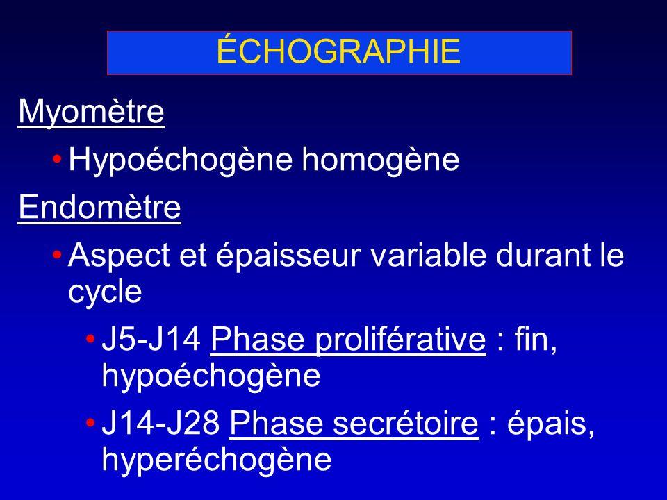 Myomètre Hypoéchogène homogène Endomètre Aspect et épaisseur variable durant le cycle J5-J14 Phase proliférative : fin, hypoéchogène J14-J28 Phase sec