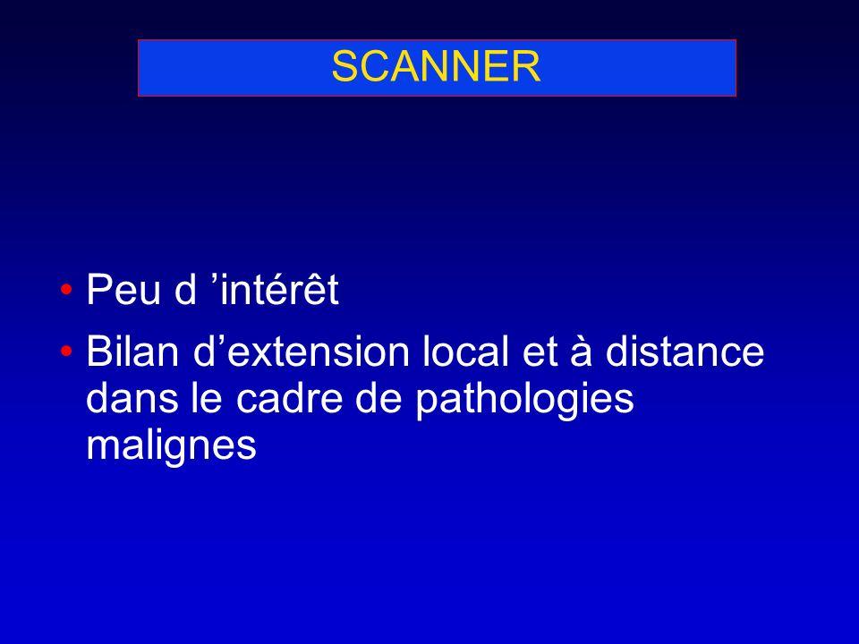 SCANNER Peu d intérêt Bilan dextension local et à distance dans le cadre de pathologies malignes
