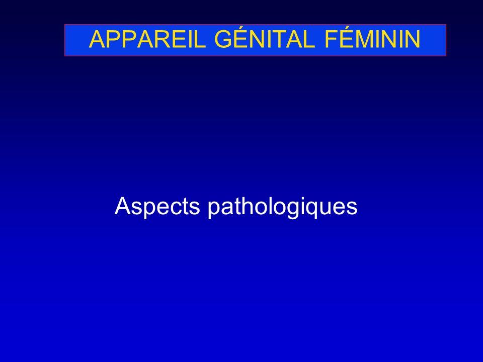 APPAREIL GÉNITAL FÉMININ Aspects pathologiques