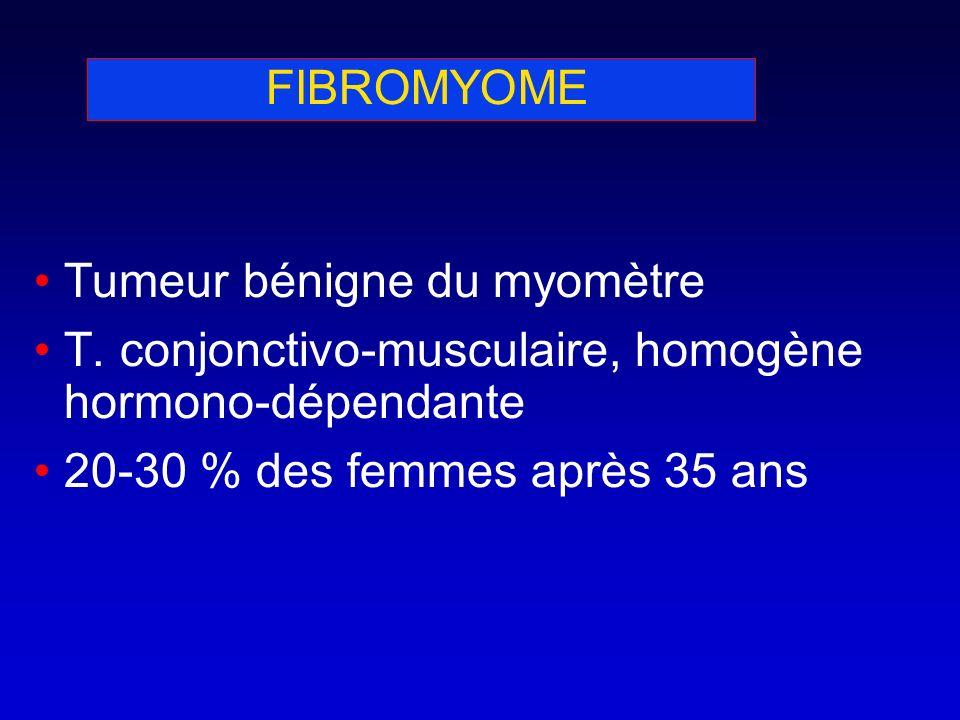 FIBROMYOME Tumeur bénigne du myomètre T. conjonctivo-musculaire, homogène hormono-dépendante 20-30 % des femmes après 35 ans