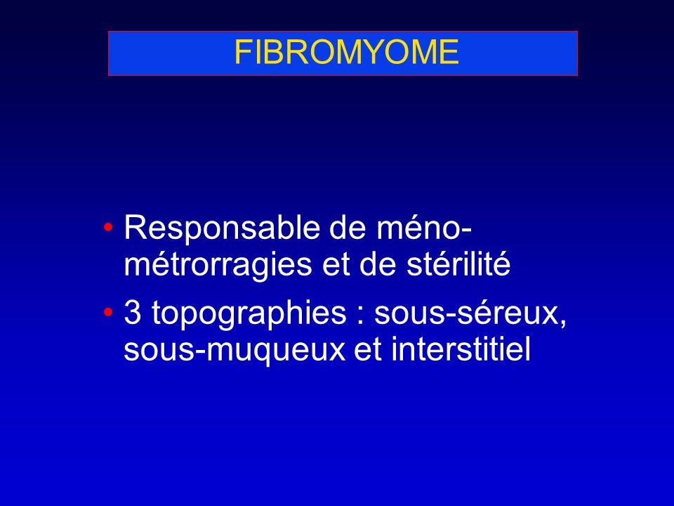 FIBROMYOME Responsable de méno- métrorragies et de stérilité 3 topographies : sous-séreux, sous-muqueux et interstitiel