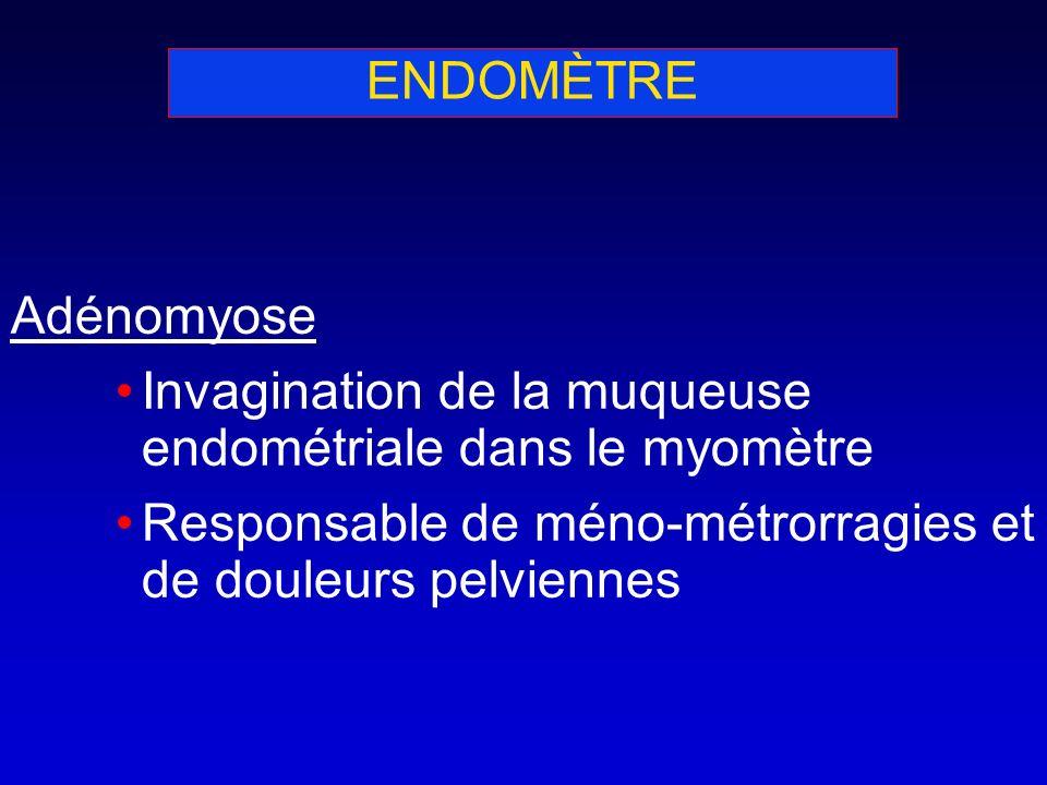 ENDOMÈTRE Adénomyose Invagination de la muqueuse endométriale dans le myomètre Responsable de méno-métrorragies et de douleurs pelviennes