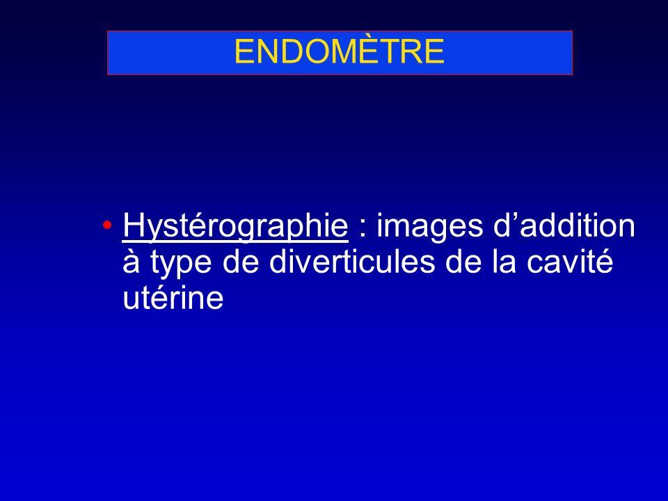 ENDOMÈTRE Hystérographie : images daddition à type de diverticules de la cavité utérine