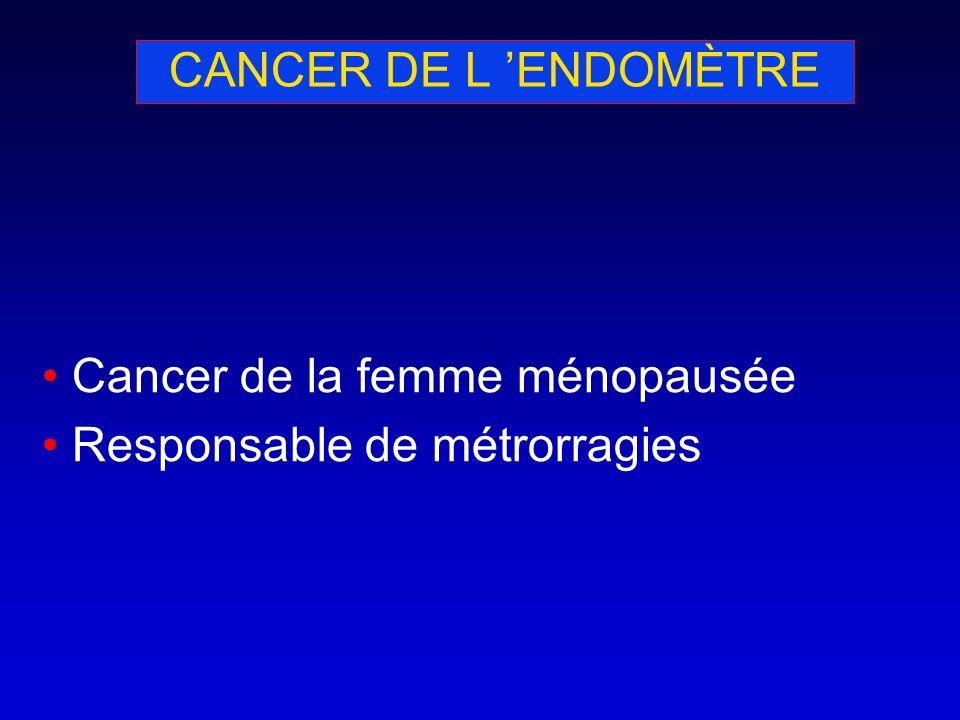 CANCER DE L ENDOMÈTRE Cancer de la femme ménopausée Responsable de métrorragies