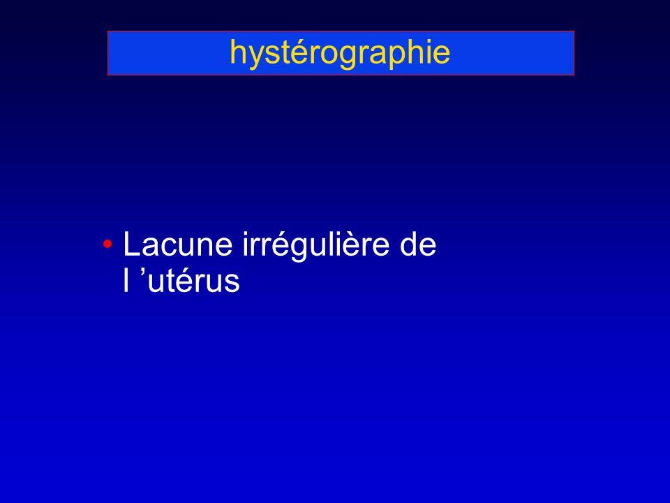 hystérographie Lacune irrégulière de l utérus