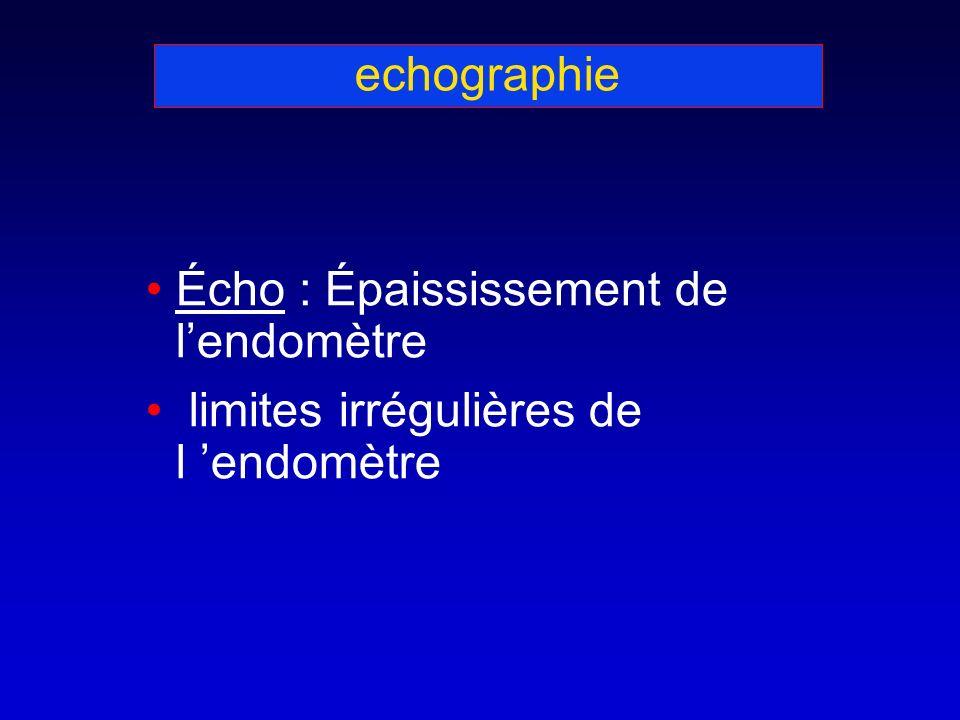 echographie Écho : Épaississement de lendomètre limites irrégulières de l endomètre