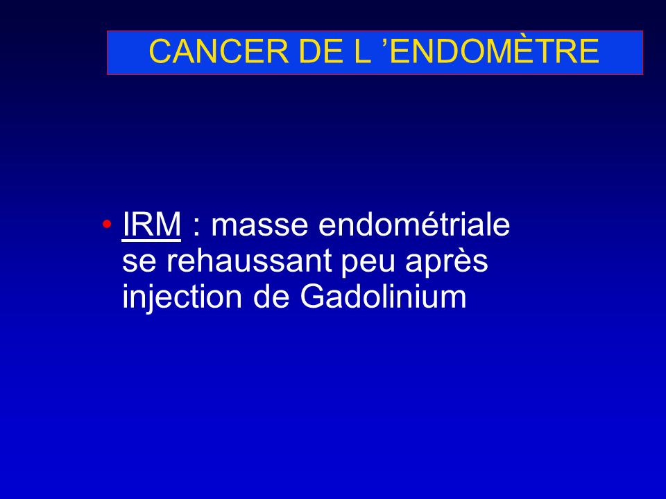 CANCER DE L ENDOMÈTRE IRM : masse endométriale se rehaussant peu après injection de Gadolinium