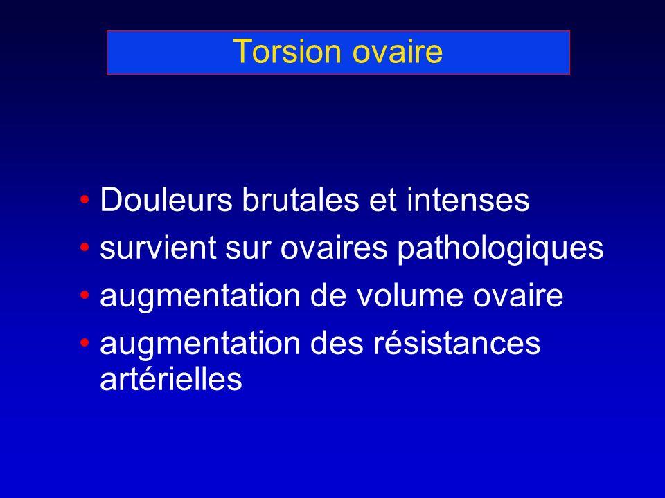 Torsion ovaire Douleurs brutales et intenses survient sur ovaires pathologiques augmentation de volume ovaire augmentation des résistances artérielles