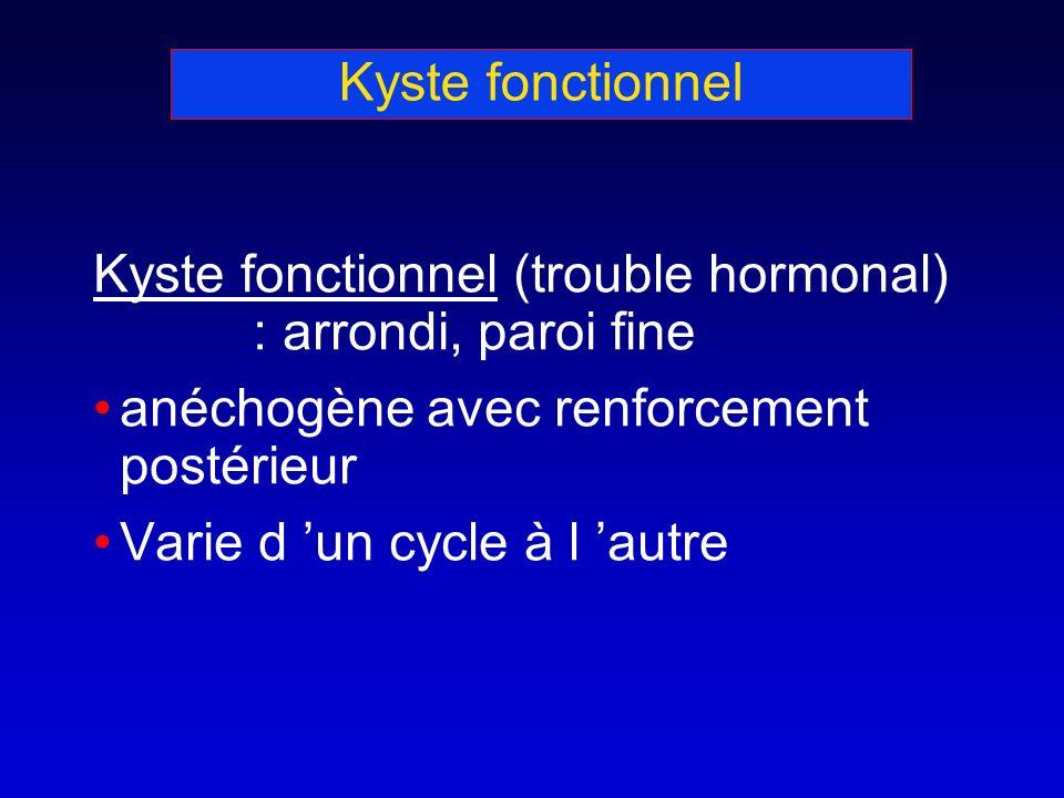 Kyste fonctionnel Kyste fonctionnel (trouble hormonal) : arrondi, paroi fine anéchogène avec renforcement postérieur Varie d un cycle à l autre