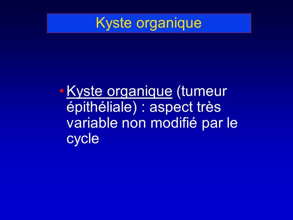 Kyste organique Kyste organique (tumeur épithéliale) : aspect très variable non modifié par le cycle