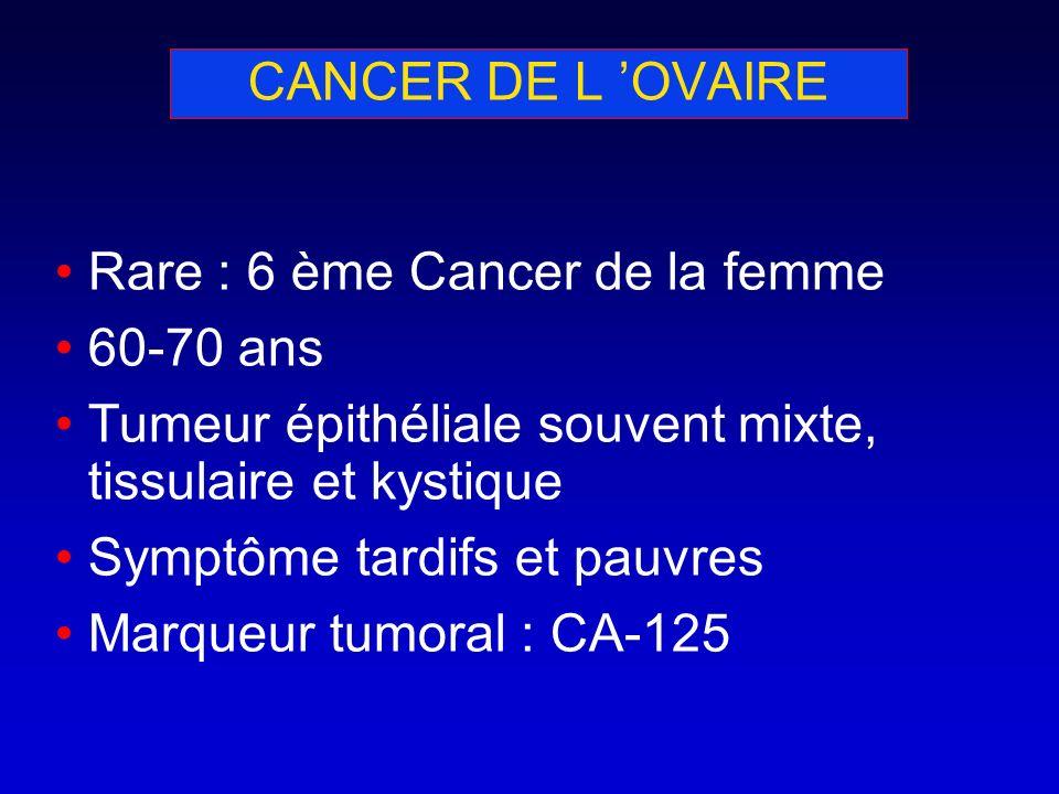 CANCER DE L OVAIRE Rare : 6 ème Cancer de la femme 60-70 ans Tumeur épithéliale souvent mixte, tissulaire et kystique Symptôme tardifs et pauvres Marq